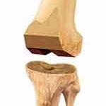 Bone Cuts